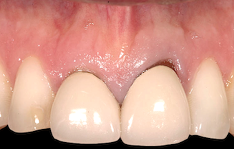 Restoring Discolored Endodontically Treated Teeth: Case 5