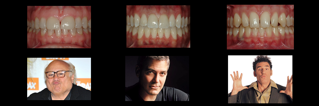 What do Teeth Proportion and Hollywood Actors Have in Common?