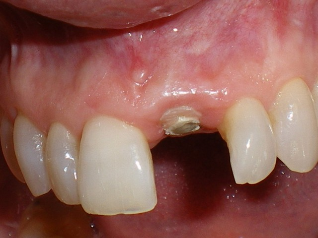 Single Central Implant: From Dreaded to Manageable