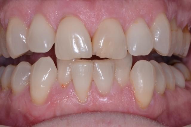 Comprehensive Dental Care in Action