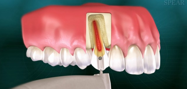 Improving Case Acceptance of Root Canal Therapy