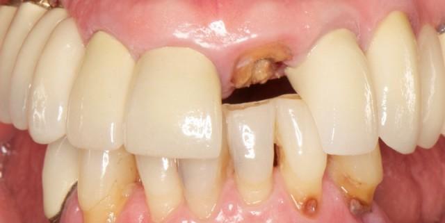 Loading Protocols for Dental Implants