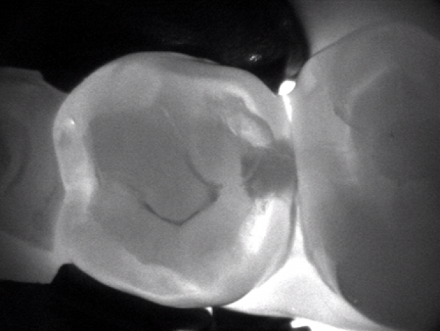 Caries Detection Tools: Select the Best for Your Practice