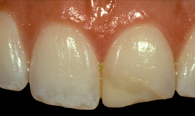 Considerations for Preparation Design and Facial Margin Placement: Part VI