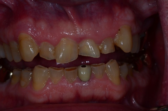 Dental Treatment Planning: You Only See What You Know