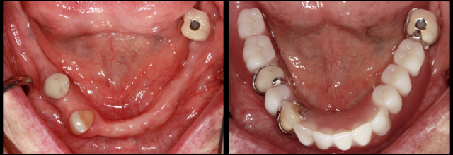 Implant-assisted Removable Partials: Highlighting the Advantages in 2 Cases