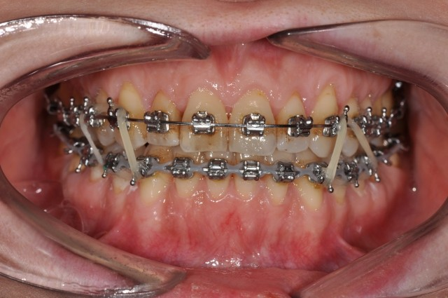 Corticotomy-facilitated Orthodontics and Goal-oriented Treatment Planning