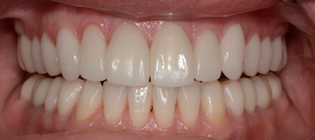 Technology Doesn't Always Make for Better Dentistry