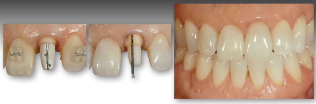 How To Restore Severely Discolored Teeth