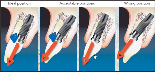 Screw-Retained Restorations With Off-Angle Implants