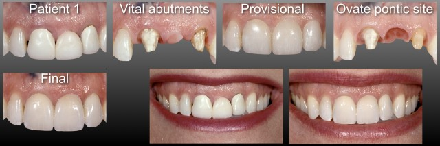 Fixed Partial Dentures vs. Implants Part I - Is One Better Than the Other?