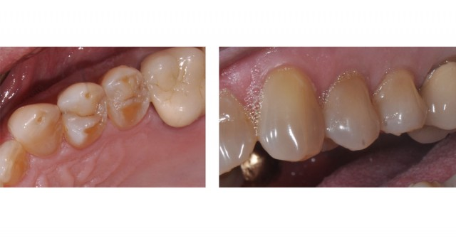 The Ideal 'Reduction Sauce' for Restorative Success with Posterior Ceramic Onlays