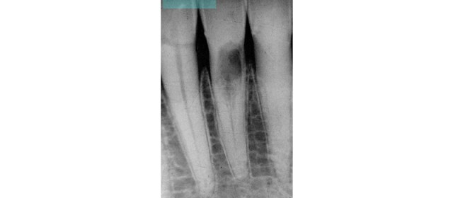 Invasive Cervical Root Resorption: The New Dental Epidemic?