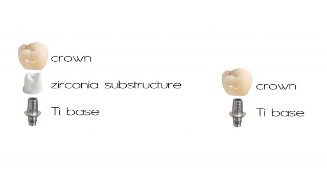 Bonding a Titanium Base to an Implant Abutment or Crown: Is There an Optimal Material and Technique