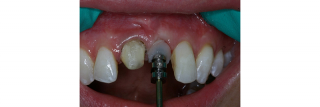 7 Ways to Increase Implant Productivity with Your Lab