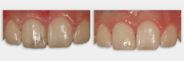 Direct vs. Indirect Restorations for a Maxillary Central Incisor