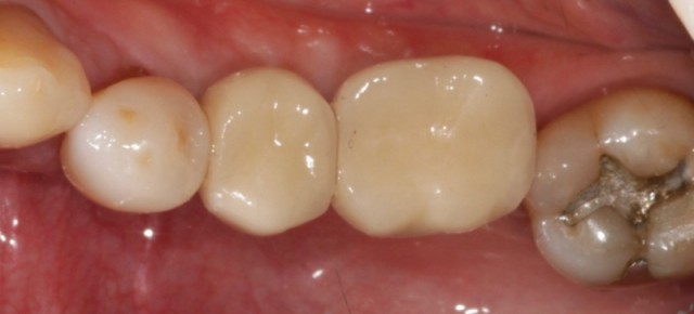 Implant Crowns – Cement, Screw or Both?