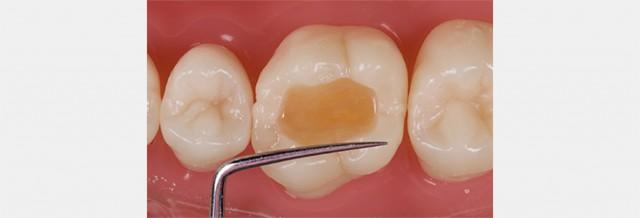 Form Follows Function: A Guide to Creating Highly Esthetic, Adjustment-Free Class 1 Restorations