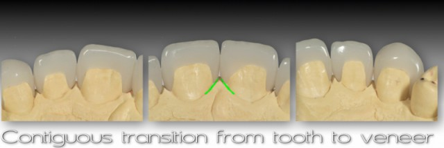 Managing Open Interdental Spaces with Indirect Veneer Restorations: Assessment and Identification of the Problem (Prologue)