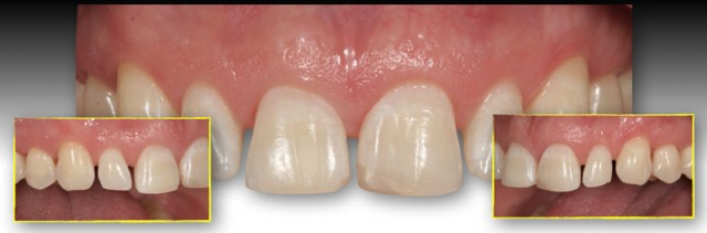 Managing Open Interdental Spaces With Indirect Veneer Restorations: Provisional Fabrication (Part 3)
