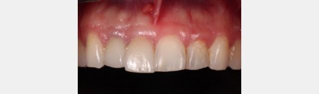Beyond Titanium: The Revolution of Zirconia Dental Implants