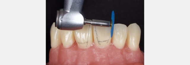 Finishing Anterior Composite: How to Recreate Natural Enamel Morphology and Texture