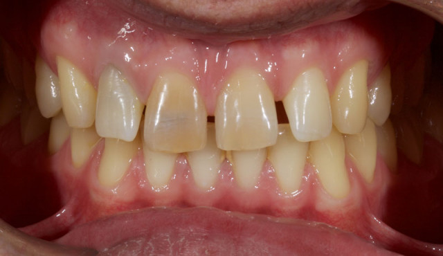 Restoration of the Peg Lateral: The Direct Resin Approach