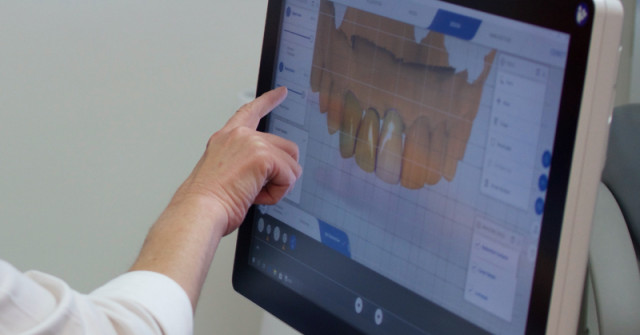 The Lab's Perspective on Digital Workflow for Restorative Dentists
