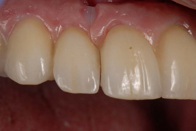 How to Temporarily Repair a Fractured Implant-Supported Zirconia Prosthesis