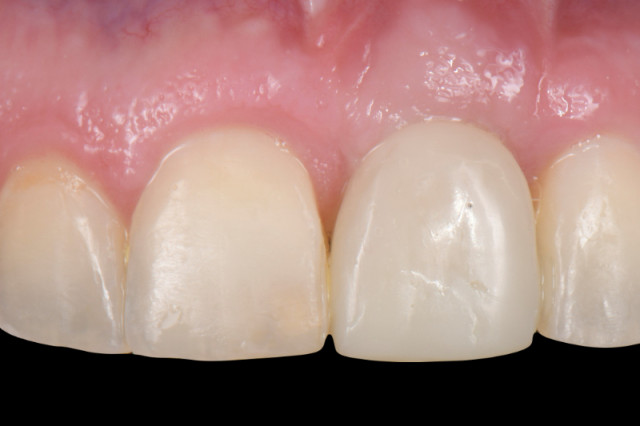 Customized Impression Coping for a Single Tooth Implant in a Maxillary Central Incisor