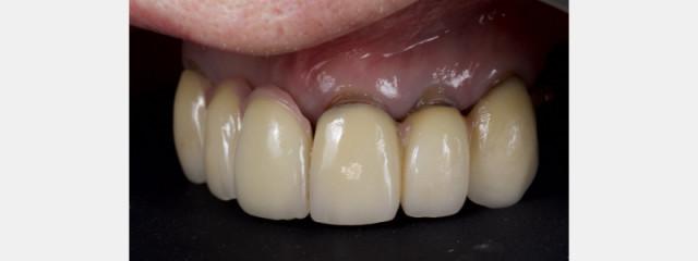 Old Tricks for New Dogs - Vertical Margin in Fixed Prosthodontics