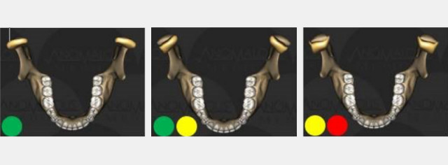 Patient History 101 (Lesson 1): Jaw Joints