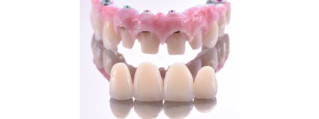 How to Transition a Removable Implant-Supported Solution to a Fixed Prosthesis (Part 2)